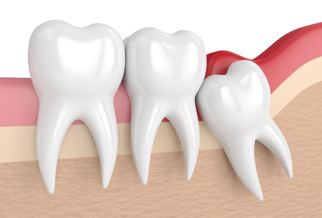 Dents Sagesse Senior