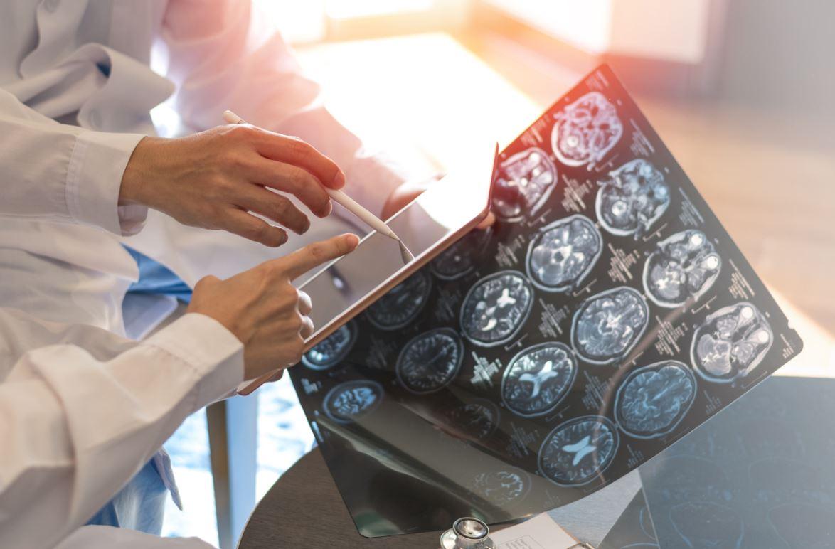 Scanner Cerveau Hydrocéphalie