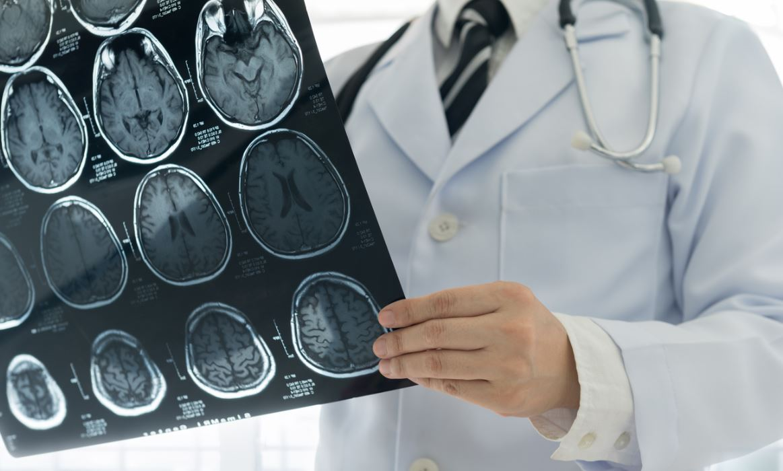 Scanner Hématome Cérébral