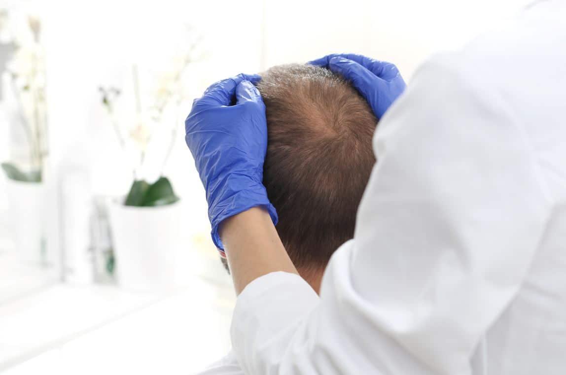 Calvitie Greffe Cheveux